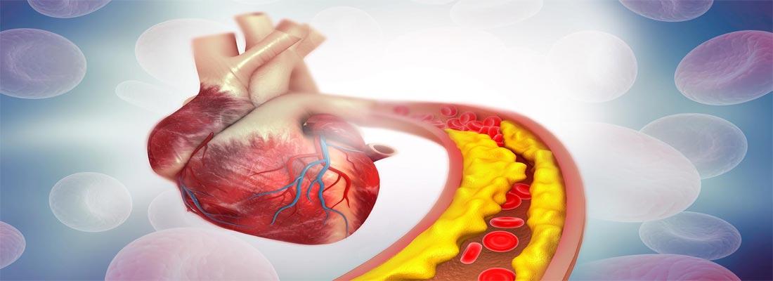 درمان چربی خون و کلسترول بالا