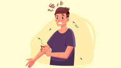 درمان سنتی نیش حشرات