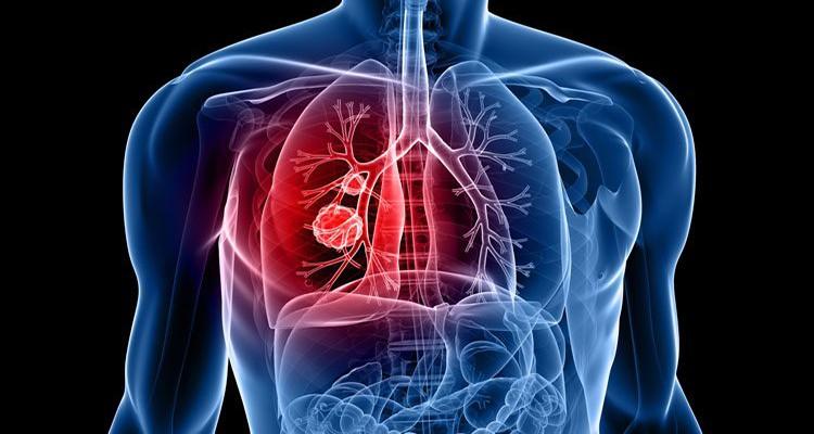 ترک عادات زمینه ساز سرطان ریه