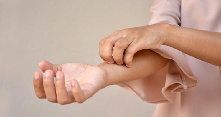 درمان خانگی کهیر در دوره بارداری