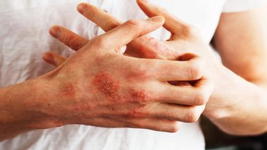 اگزما و خارش پوست