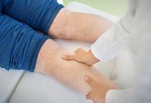 درمان واریس با خاکشیر