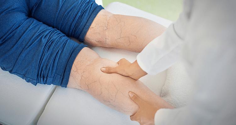 درمان سنتی واریس با خاکشیر