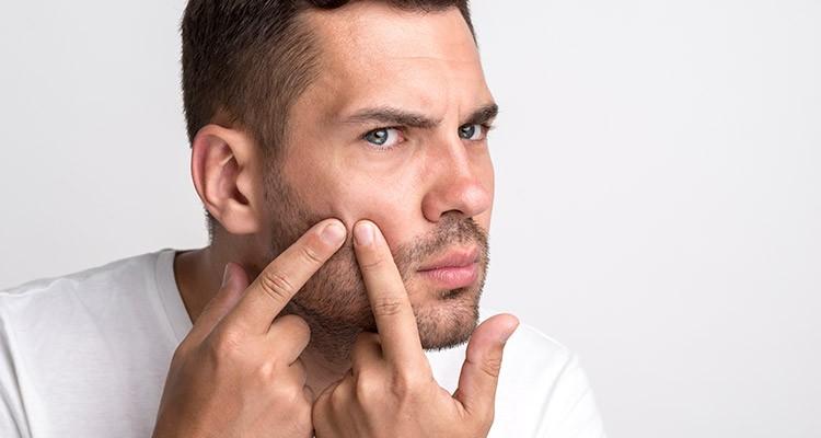 درمان سنتی جوش صورت