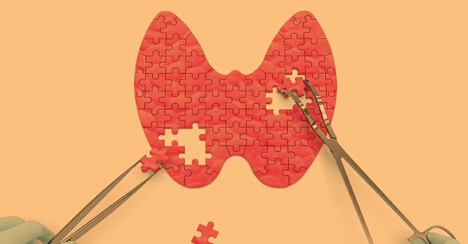 تدابیر کمک کننده جهت بهبود و درمان کم کاری تیروئید در طب سنتی