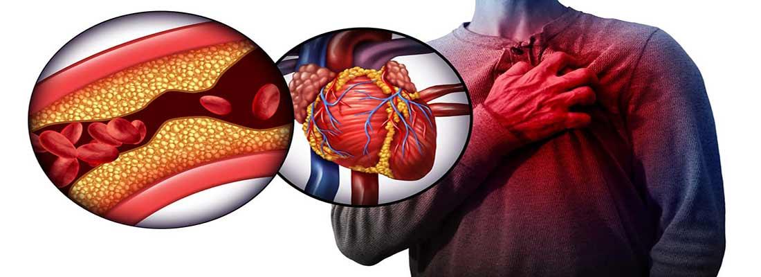 عوارض و نشانههای شایع فشار خون بالا