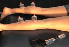 تأثیرات درمانی حجامت ساقین