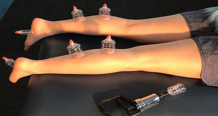 تاثیرات درمانی حجامت ساقین