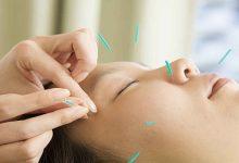 جوانسازی پوست با طب سوزنی زیبایی
