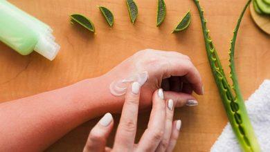 درمان آفتاب سوختگی از منظر طب سنتی