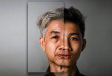 راه های پیشگیری از پیری پوست