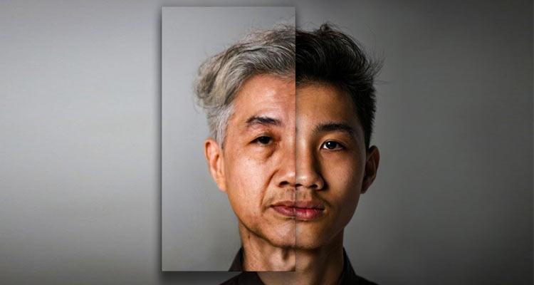 پیشگیری از پیری پوست در طب سنتی