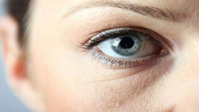 گودی و تیرگی زیر چشم