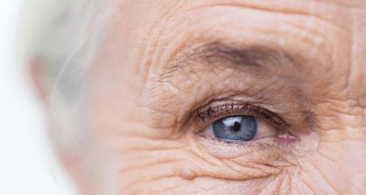 پیشگیری و درمان پیرچشمی در پزشکی جدید