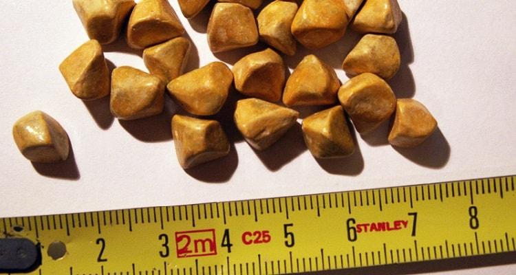 پیشگیری و درمان سنگ کیسه صفرا در پزشکی جدید