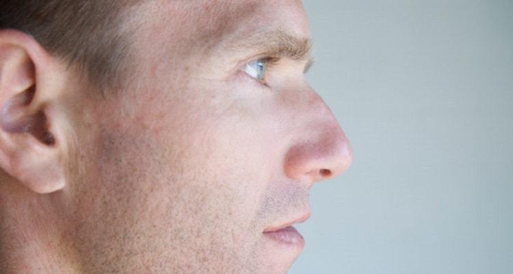 درمان انحراف بینی در طب جدید