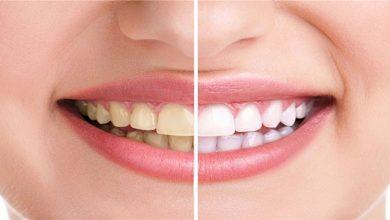 رنگ دندان و لثه گویای مزاج شما