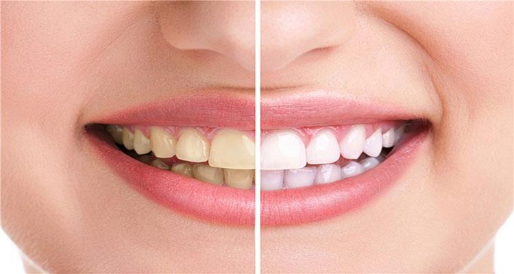 تاثیر مزاج و طبع افراد بر روی رنگ دندان ها