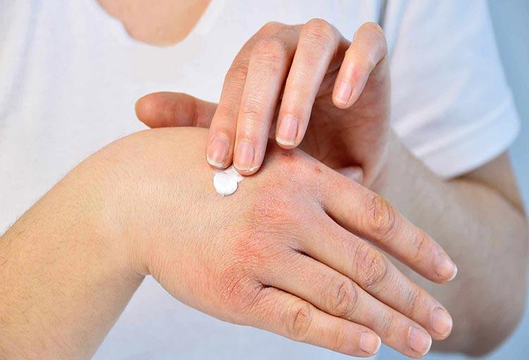 بهترین تدابیر درمانی خشکی دست بر اثر شستشوی زیاد