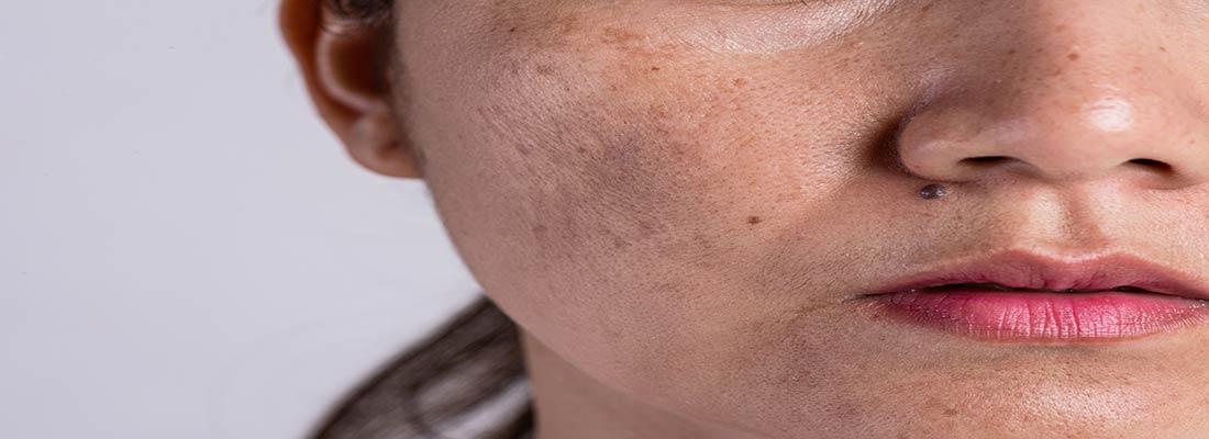 گام های درمانی لک و تیرگی پوست
