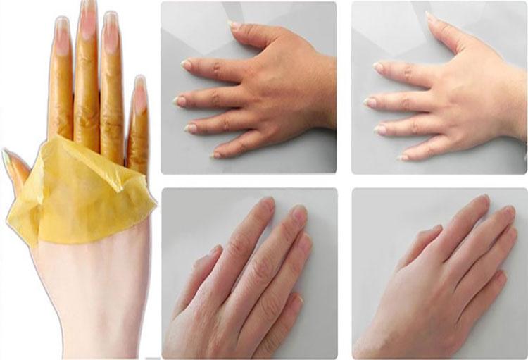 پوست دست هات رو سفید کن