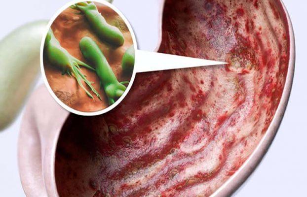 زخم معده ؛ از علل تا درمان در طب سنتی