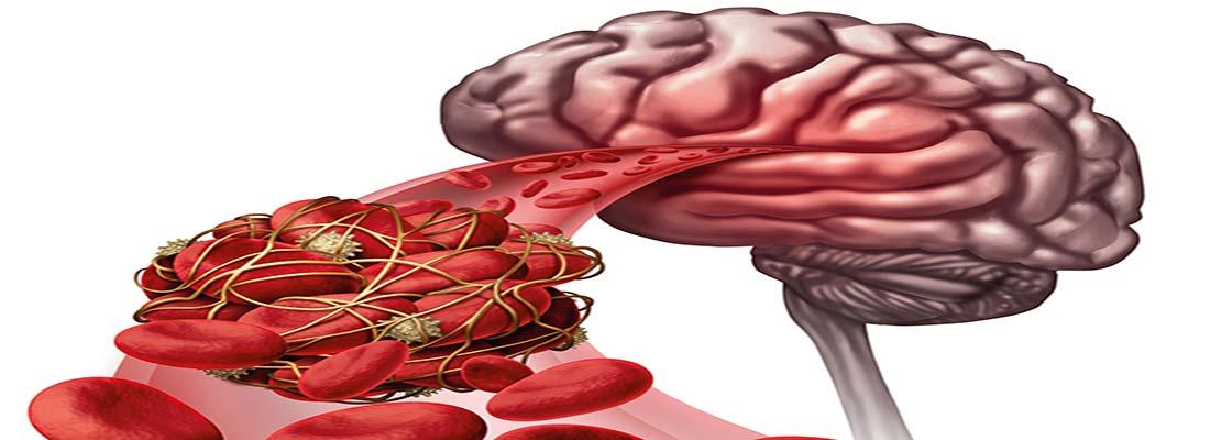 لخته شدن خون و تأثیر آن در بروز سکته مغزی و قلبی