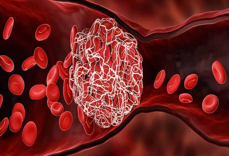 کاهش خطر لختگی خون با تدابیر خانگی