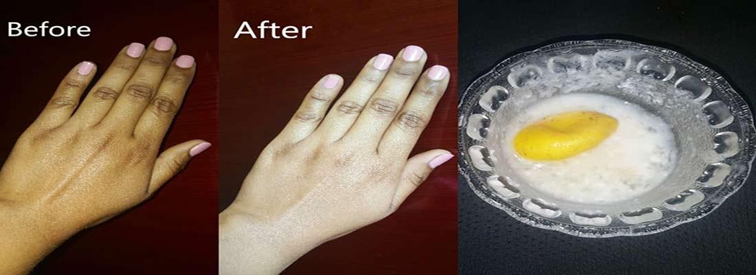 اسکراب سفید کننده پوست دست