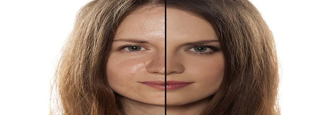 علل چرب شدن بیش از حد پوست و مو