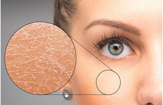 درمان انواع خشکی پوست از منظر طب ایرانی